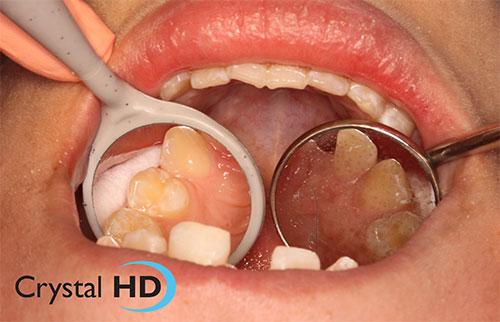 crystal-hd-dental-mouth-mirror